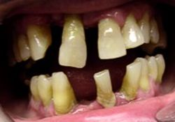 Uncontrolled Periodontitis