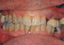 60 Year old worn down teeth