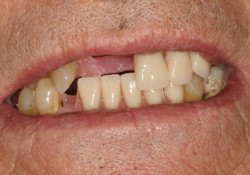 Bad Teeth Dentures Partials Breakage Causes of Faulty ...