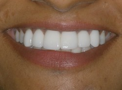 Dental Implants from Celeb Jaws Health