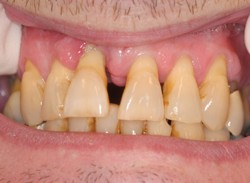 Gum Recession Crowns