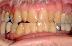 Yellow Teeth Failed Crowns Occlusion