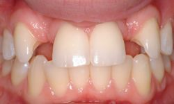 Large Tooth Gaps Orthodontic Flared Anteriors