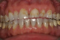 Tooth Height Loss Erosion