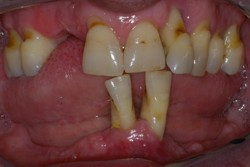 Severe bone tooth loss