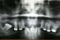 Bone Loss Xray Picture