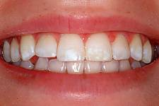custom whitening beforephoto Your 5 Moments for Hand Hygiene