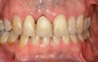 Preoperative Before Photo Crown Lengthening Procedure