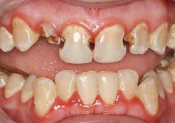 Early Stages Drug Abuse Meth Mouth