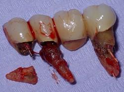 Bridge and Anchor Tooth Loss