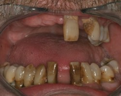 Methamphetamine dental bone teeth loss
