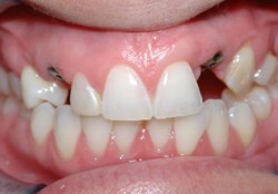 Implants for Adult Missing Teeth