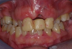 Gross Orthodontic Distortion Abnormalities