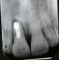 Periodontal Xray Before Photo Socket Grafts Procedure